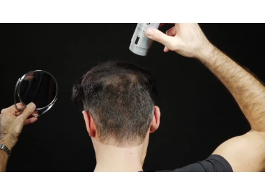 Thinning hair? try with Hair Fibers
